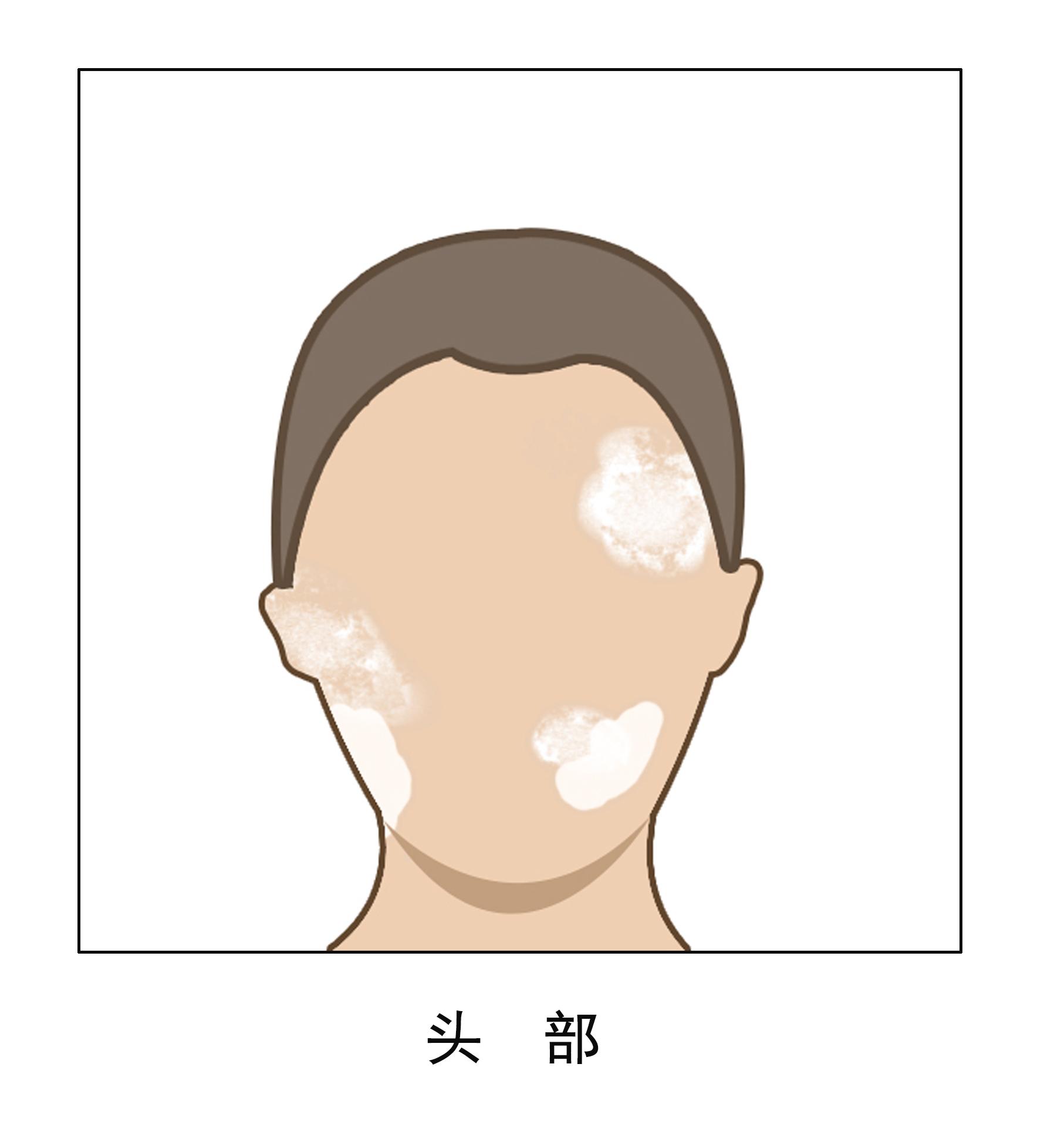 头部白癜风患者需要注意哪些问题