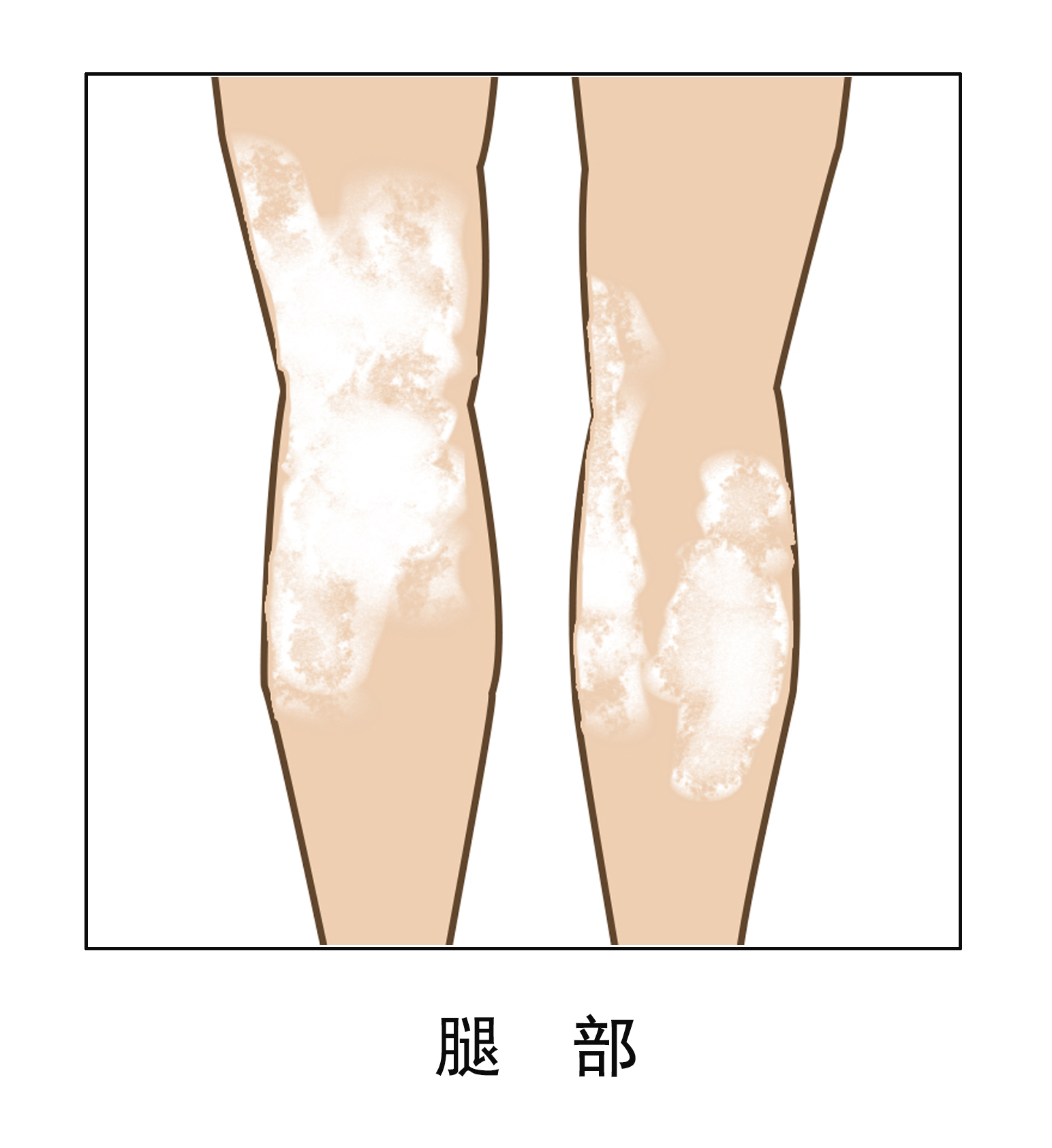腿部白癜风治疗要注意什么