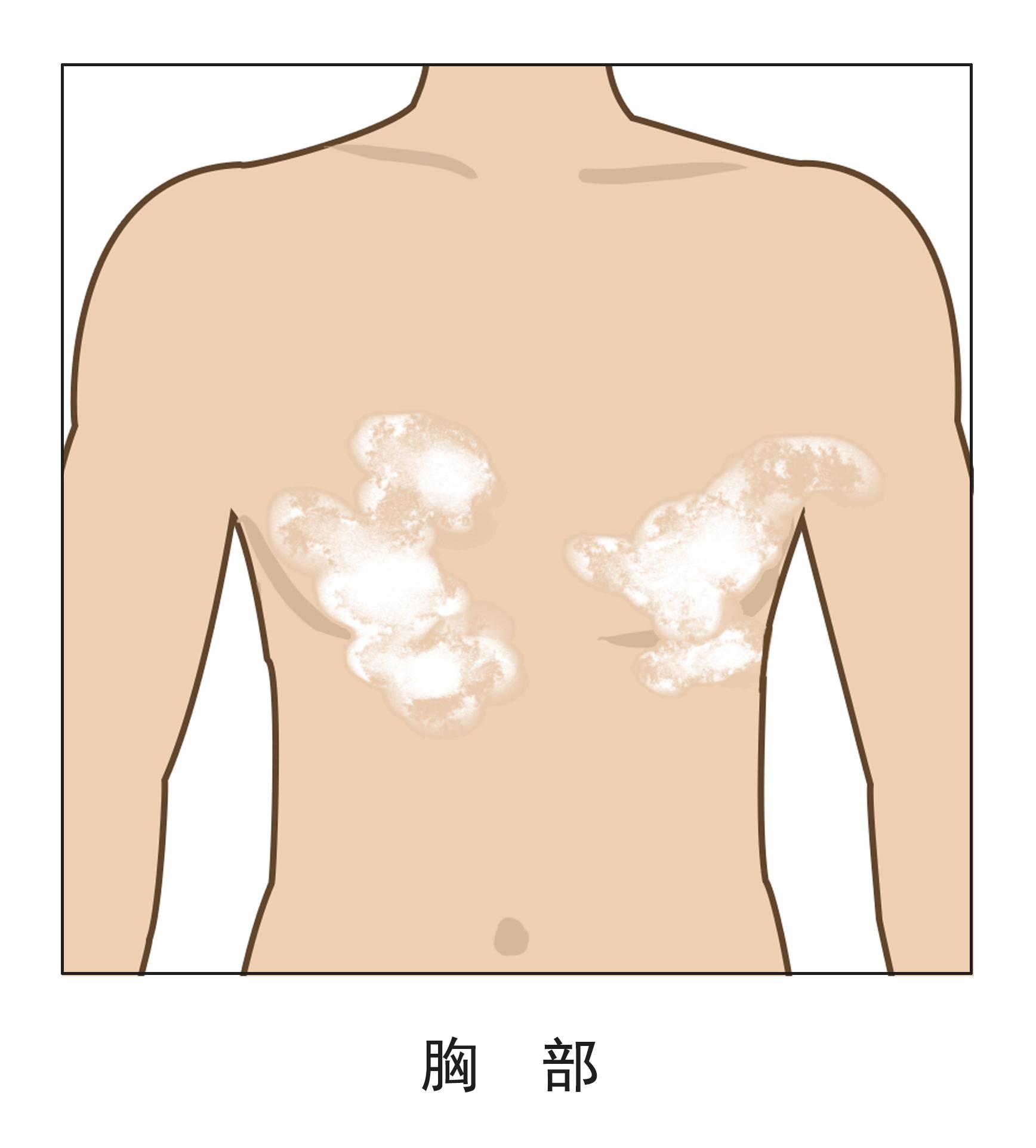 胸口处长白癜风是什么原因导致的