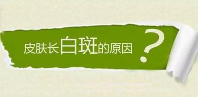 云南白癜风病因是什么呢