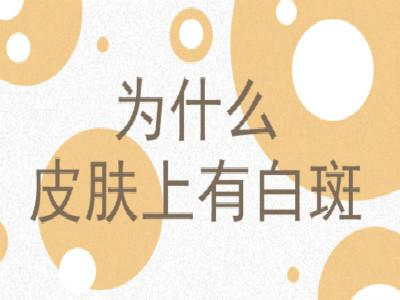 云南白癜风发病的病因都有什么