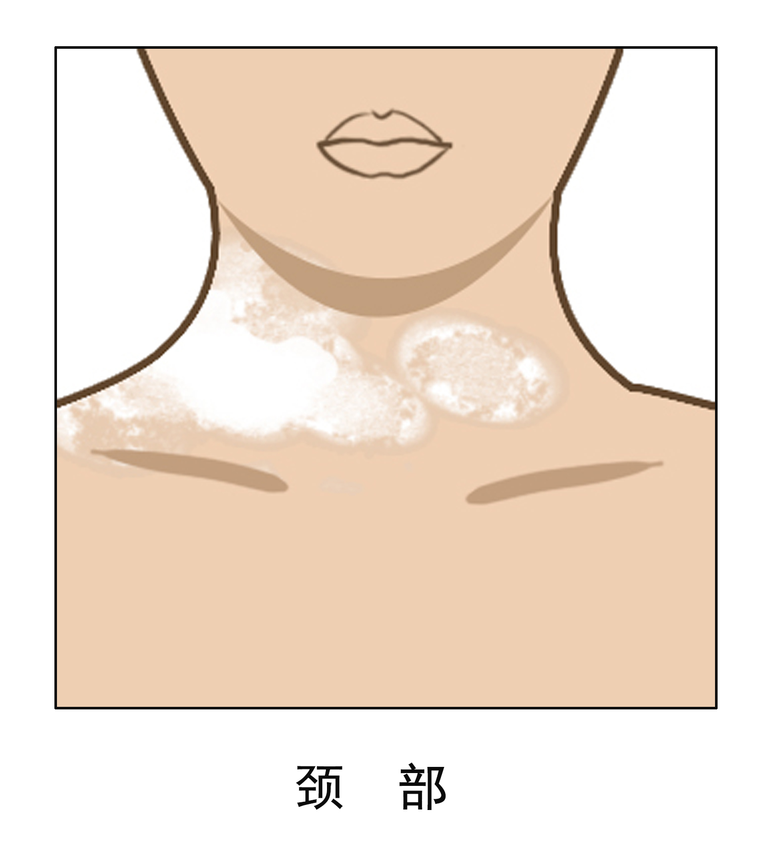 为什么女性颈部白斑会扩散