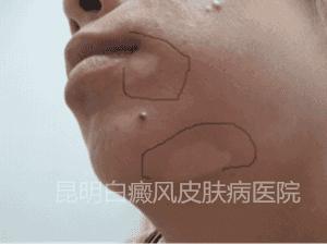 28岁女性下颌部白斑,在我院成功康复